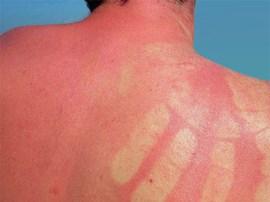 Sonnenbrand: Schlecht für die Haut und auch noch sehr unangenehm.
