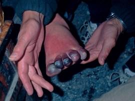 Diese Zehen haben schon mächtig was abbekommen.
